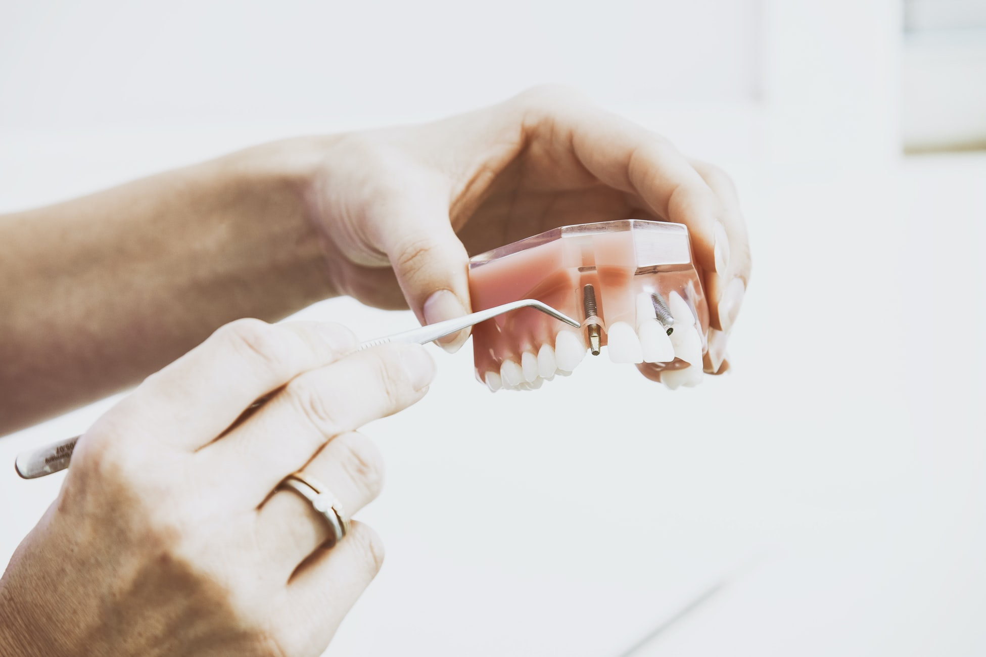 A dentist holding a fake set of teeth in her hands showing how implants work