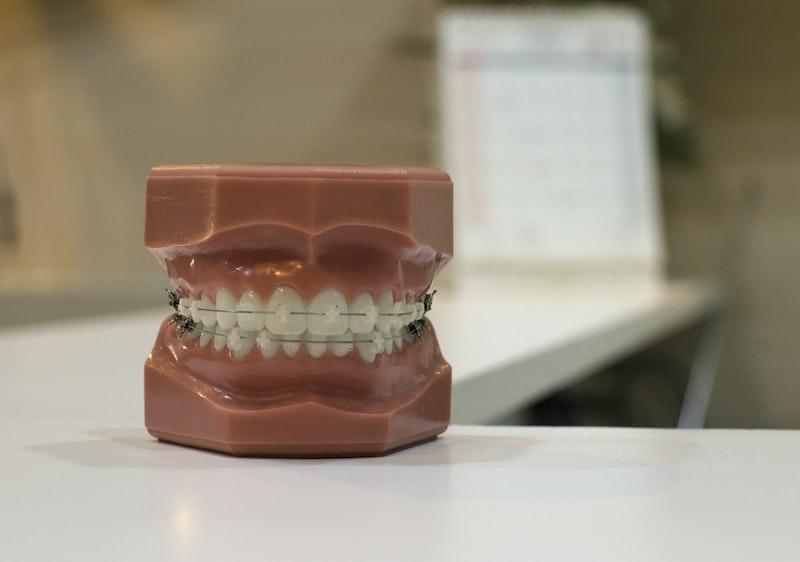 牙醫師解答5個要做牙齒矯正的原因