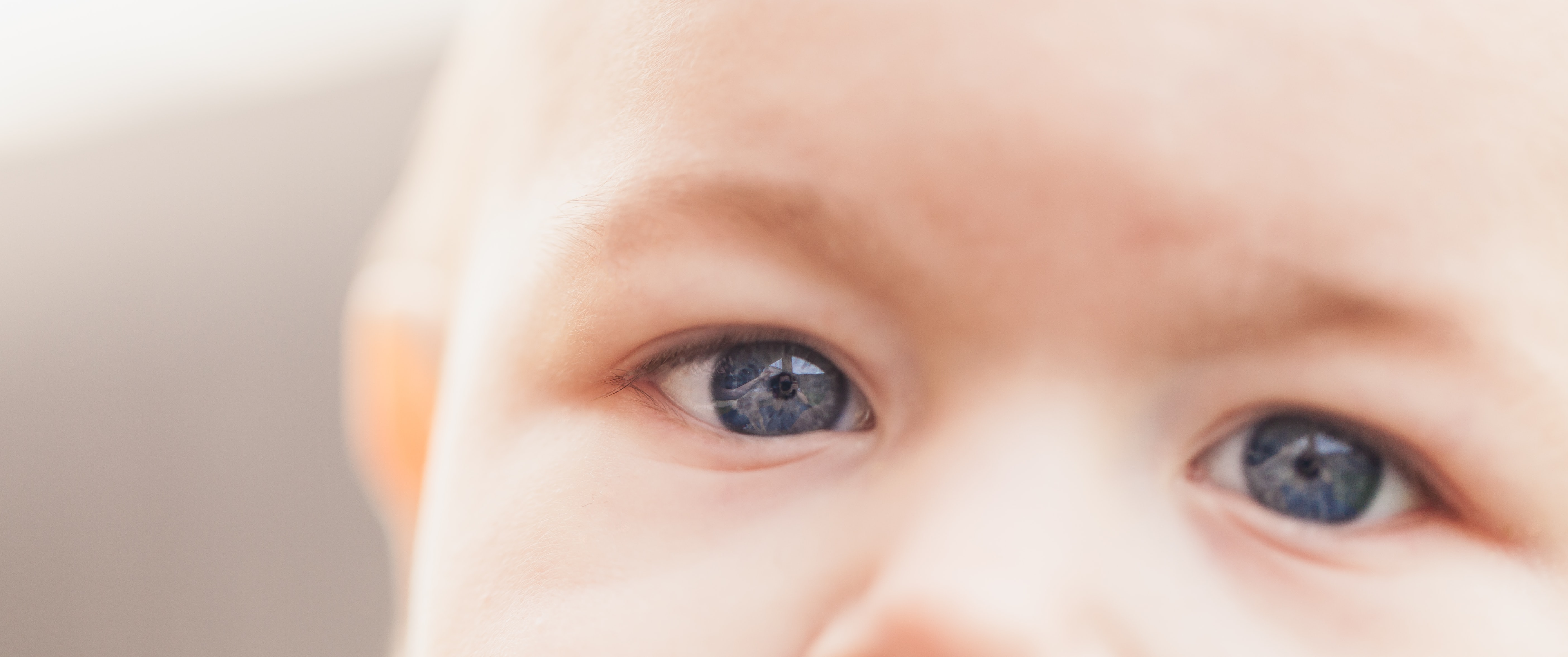 View of a baby's forehead and nose with light blue eyes and light eyebrows