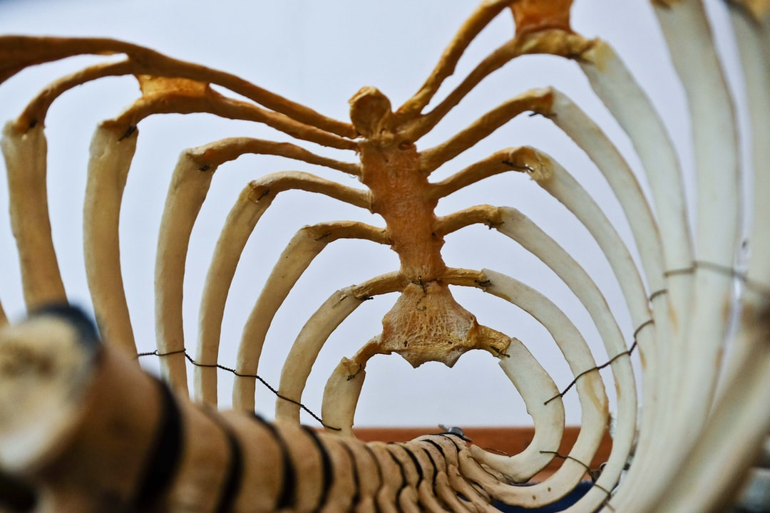 Anatomy human body. This picture depicts a ribcage. The school owns a number of real human bones which were purchased about 70 years ago when trading with human bones was still legal.