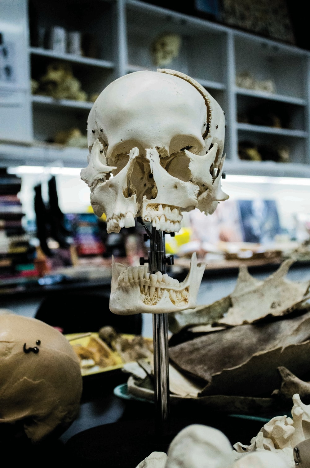white human skull
