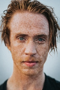 closeup photo of man's face with marks