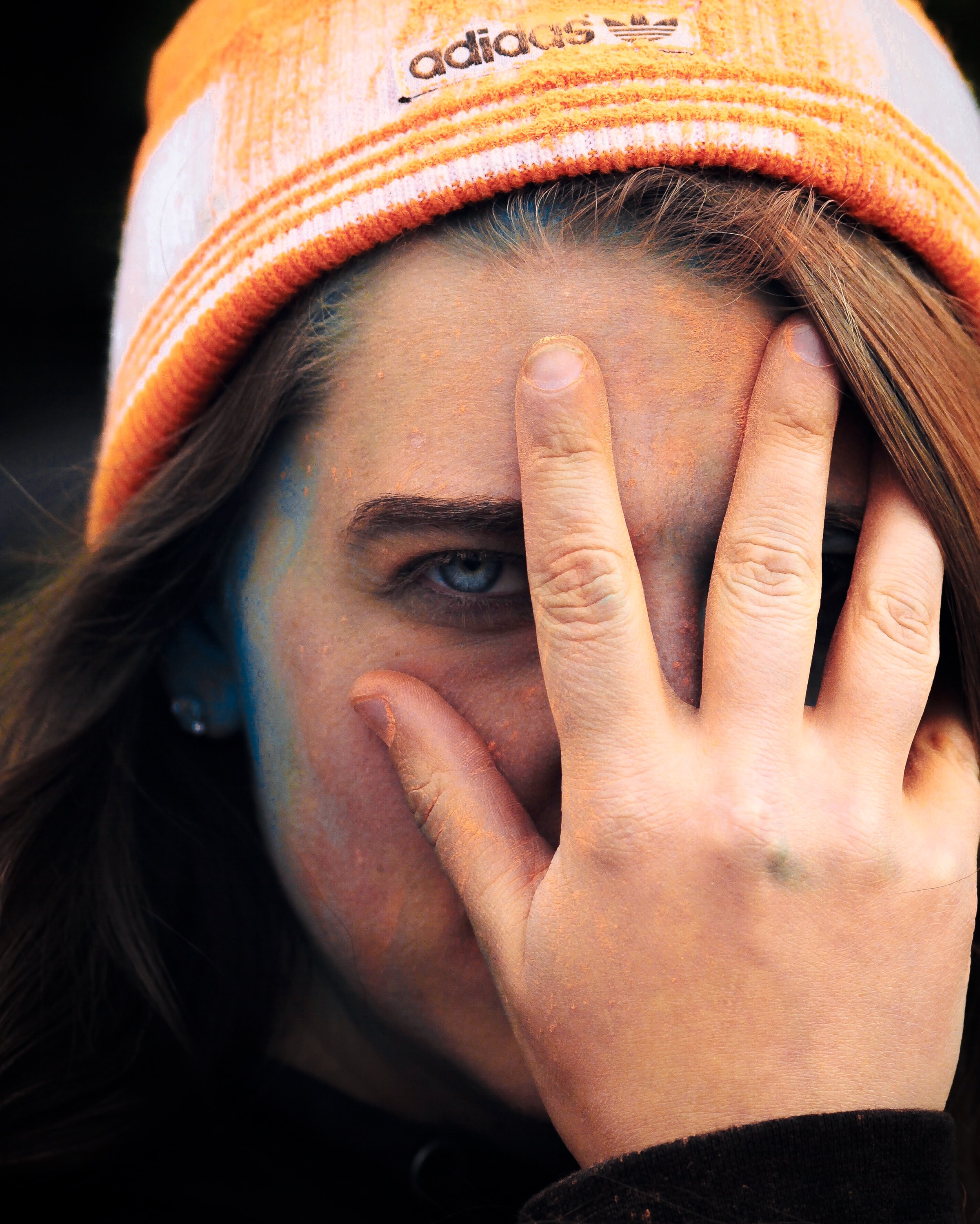 woman wearing adidas cap holding her face