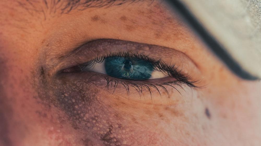 Cara Menghilangkan Flek Hitam Membandel Secara Alami