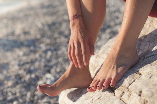 Hoe je voetschimmel kunt voorkomen