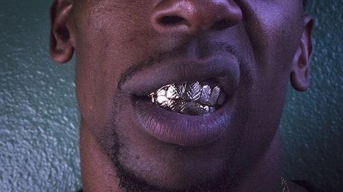 Teeth Blackening