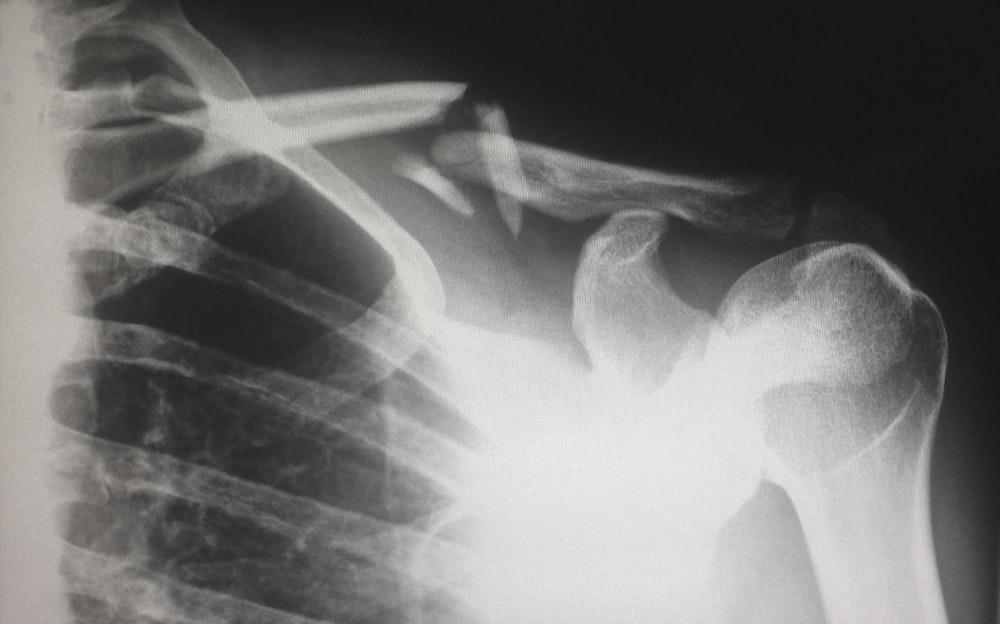 human X-ray result chart