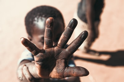 boy with black stain on hand zambia teams background