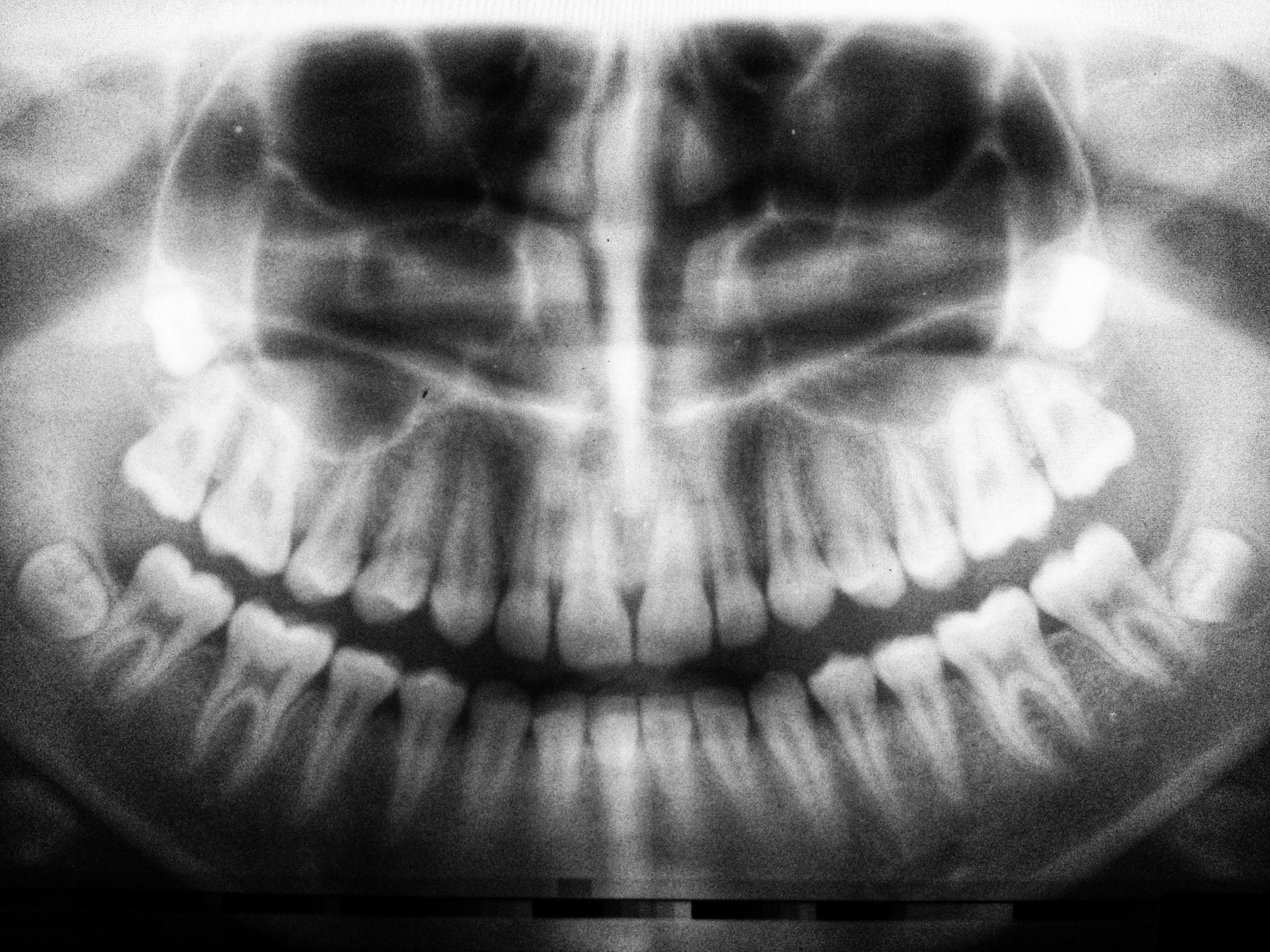 流程 保險,植牙 失敗,假牙 推薦,痛 失敗,流程 風險,推薦 風險,費用 痛,風險 植牙,推薦 植牙,痛 保險