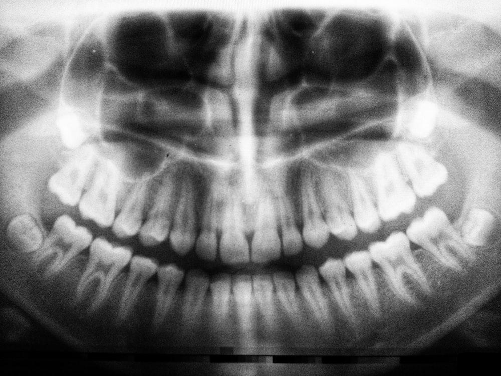 teeth X-ray