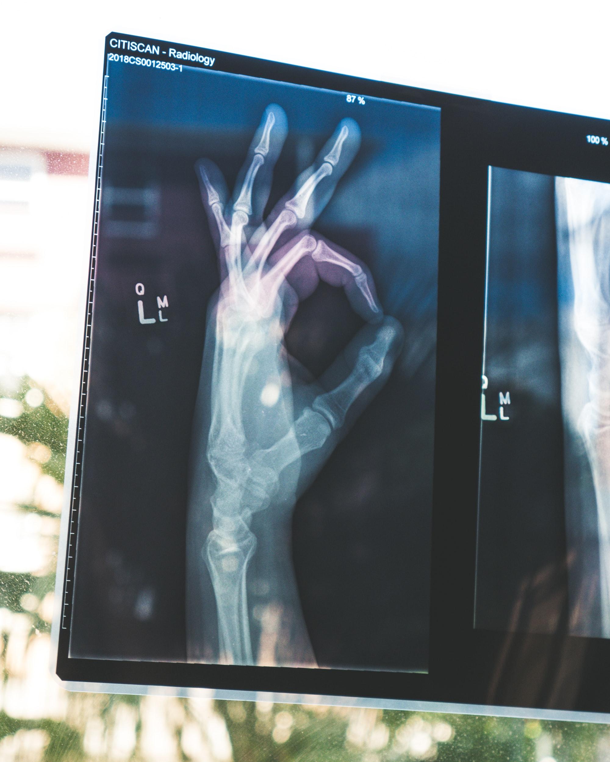 """Neuer Kurs auf Basis des """"AI for Healthcare Bootcamps"""" von der Stanford University!"""
