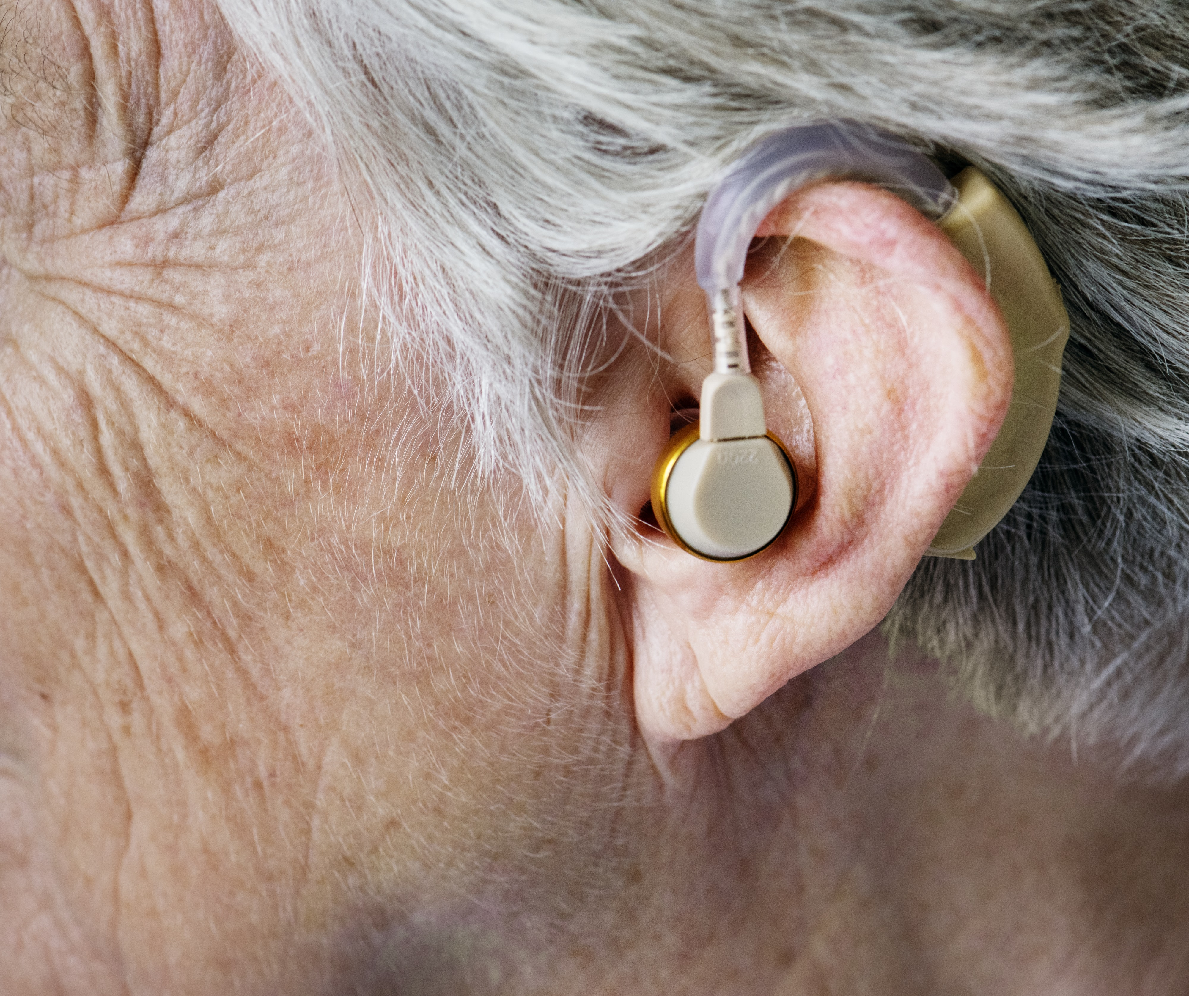 Questions About Hearing You Must Know the Answers To