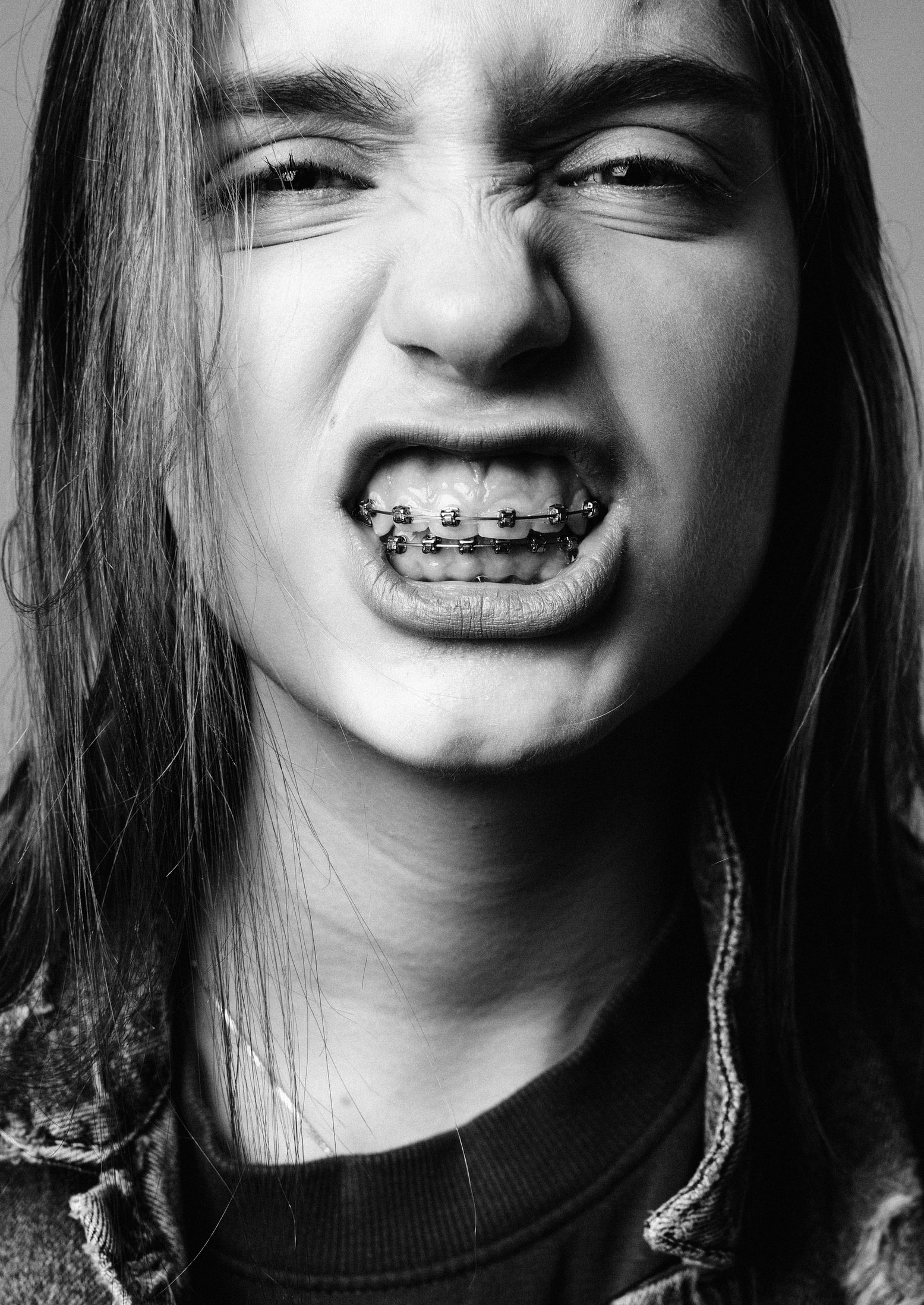 woman with braces
