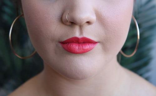 lip fillers cost