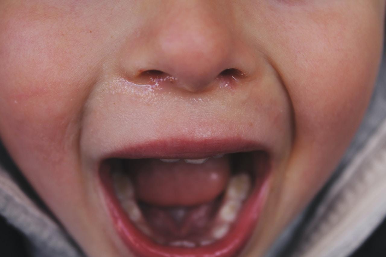 childrens teeth dentist image in stoke