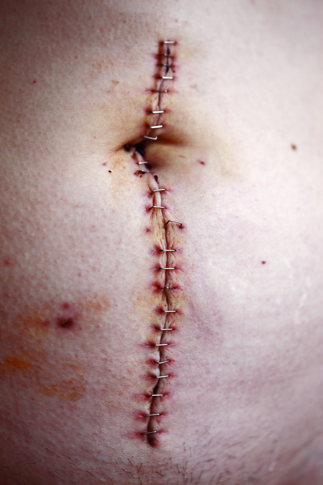 Close up of the large incision the surgeon made for my wife's right hemicolectomy surgery due to severe Crohn's disease.