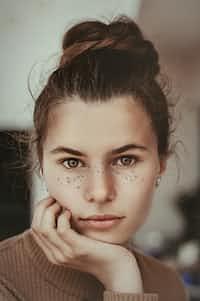 Pimple:CONTEST ENTRY pimple stories
