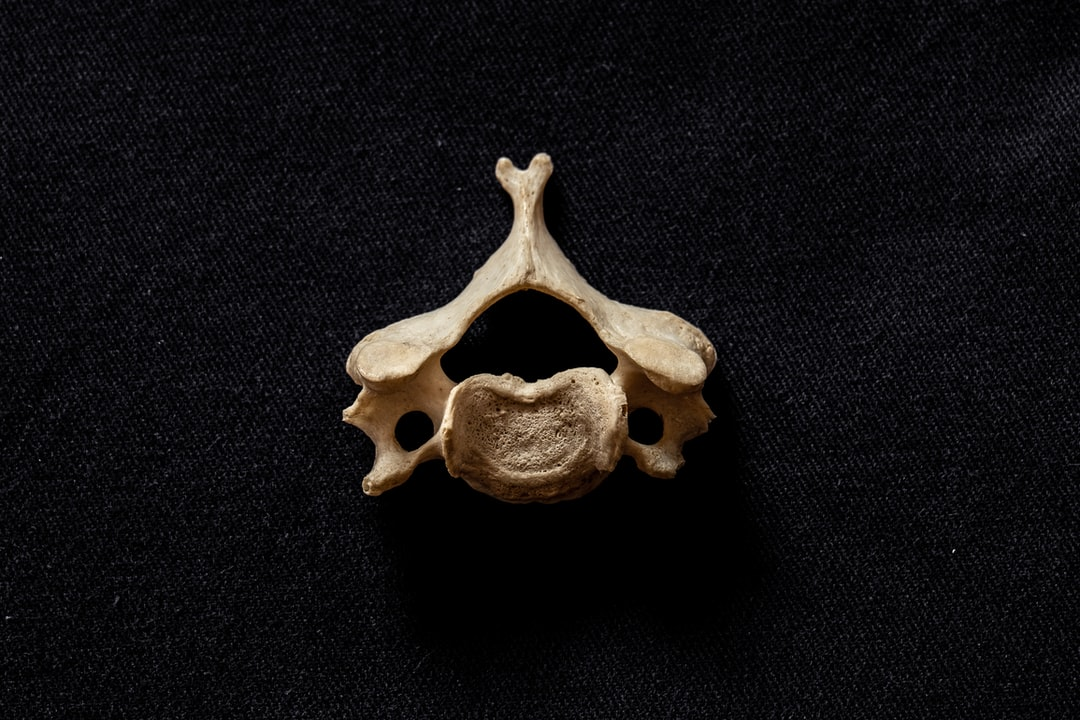 Typical C3-6, human cervical vertebra , bifid spinous process clearly visible