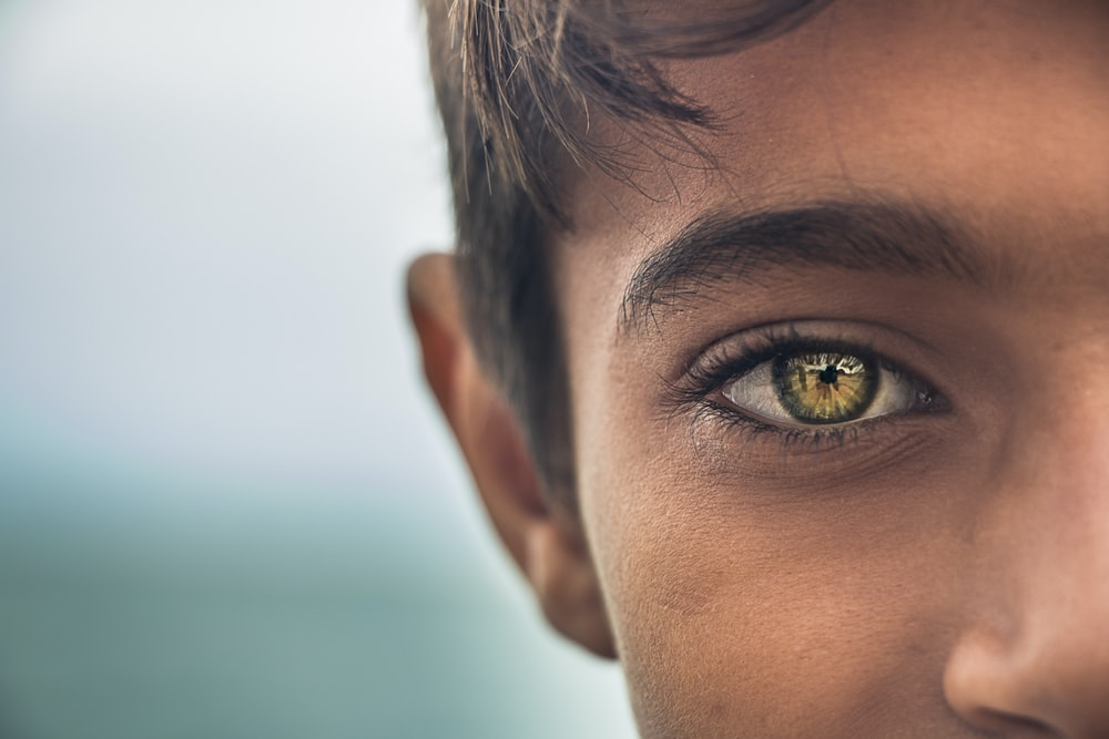boy with gold eye