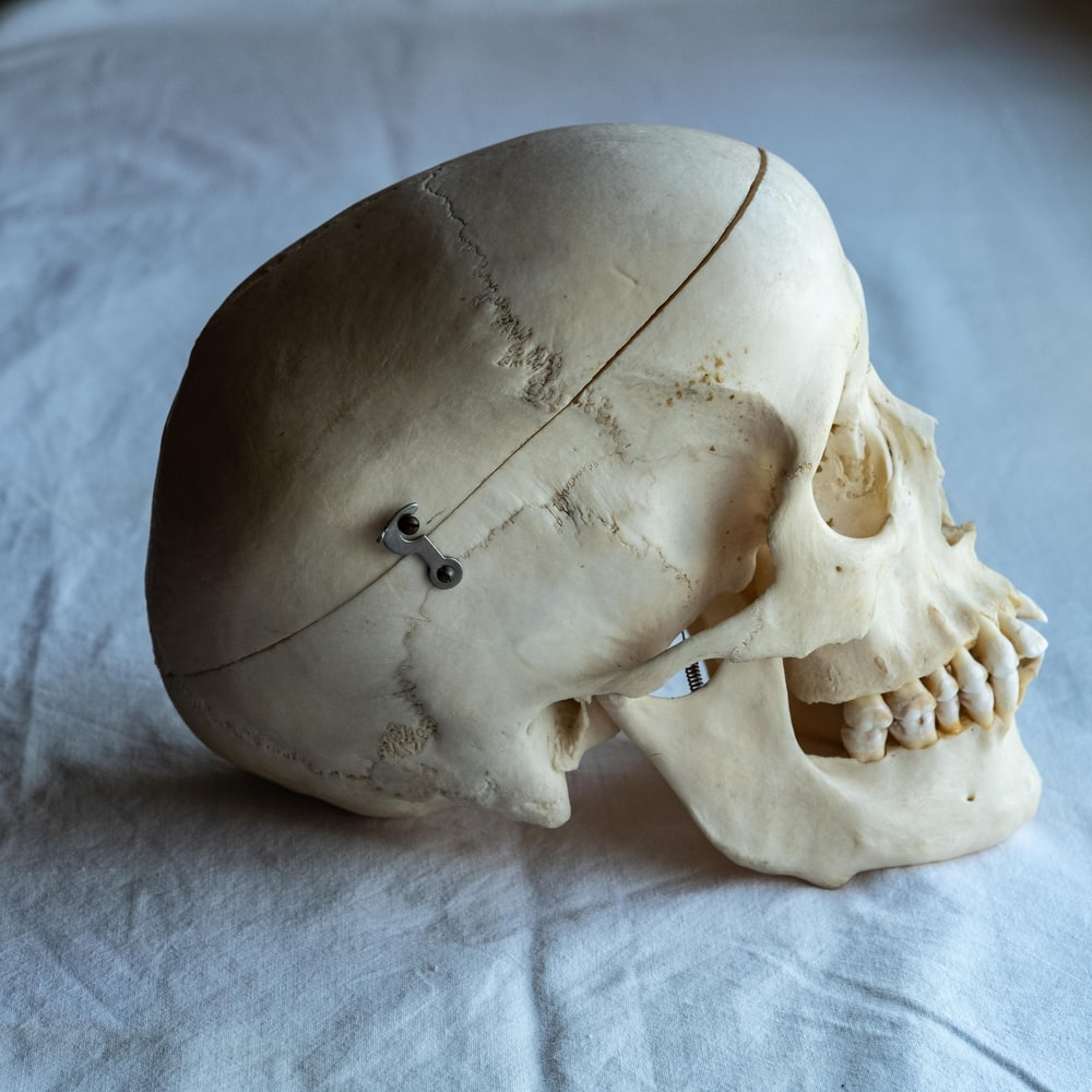 white person's skull