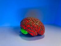 AI Classifies Brain Tumors