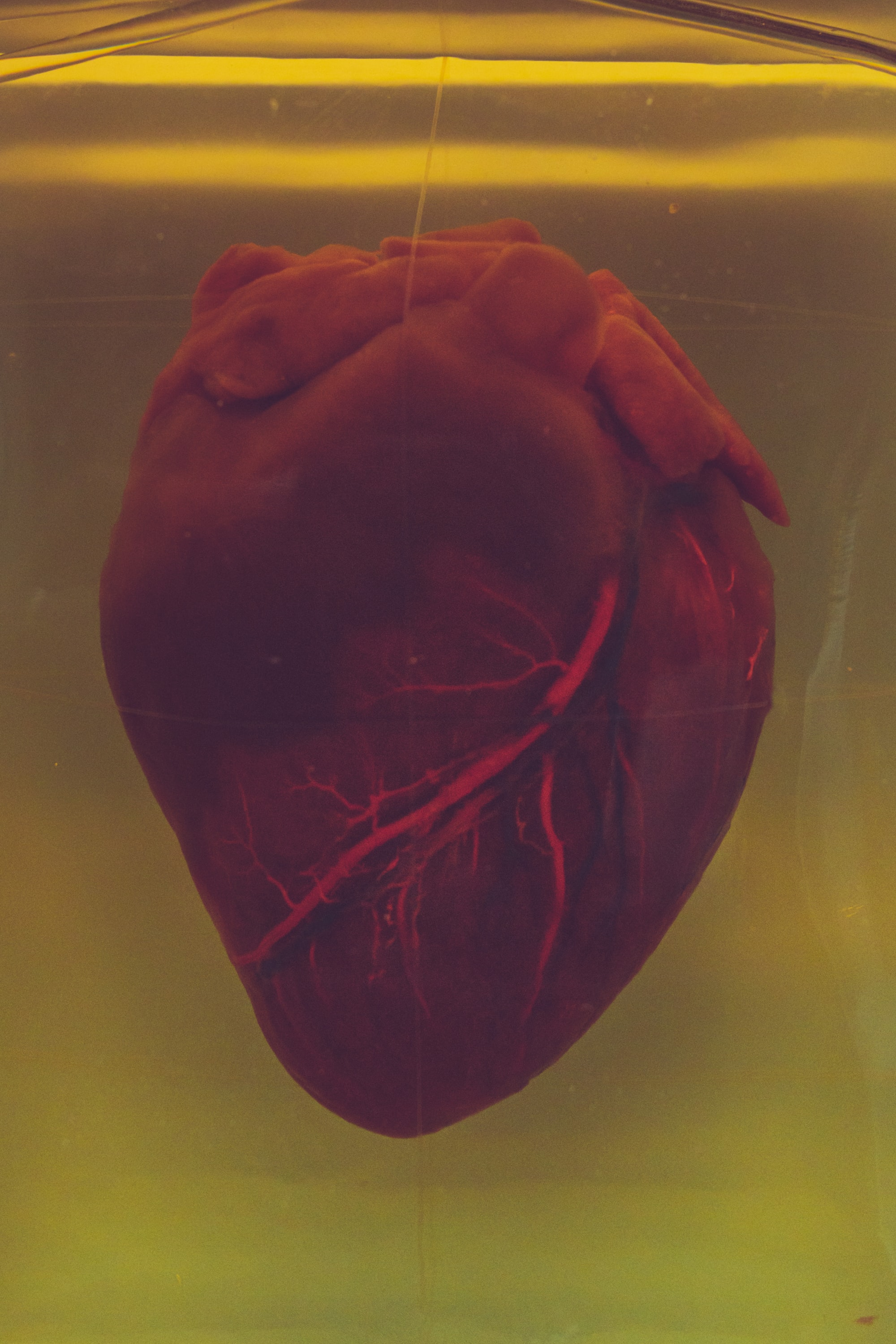 A real human heart inside a jar