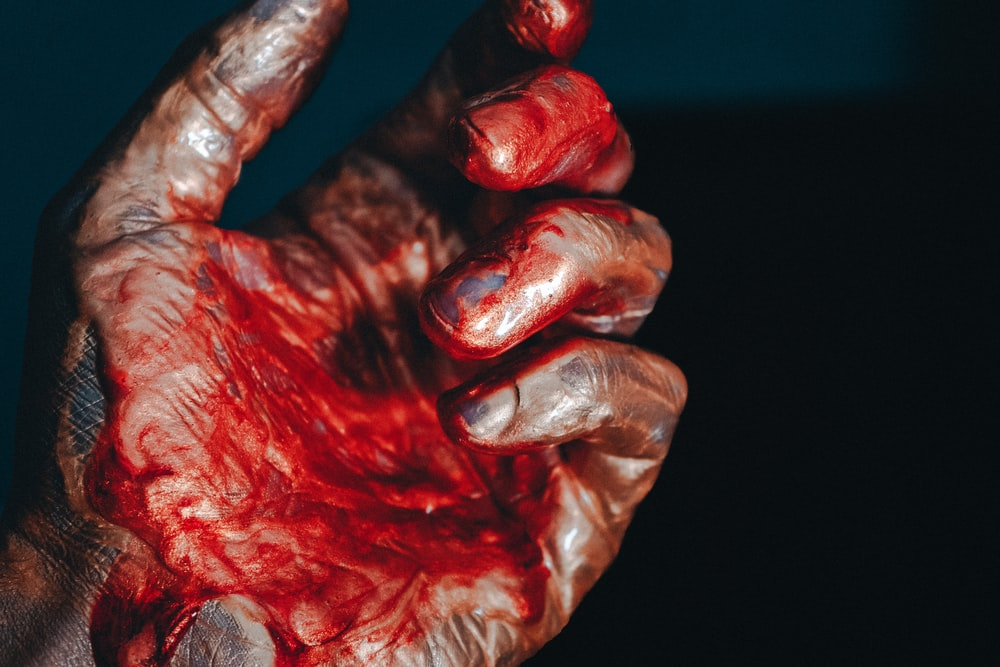 Blood Hand Pictures Download Free Images On Unsplash