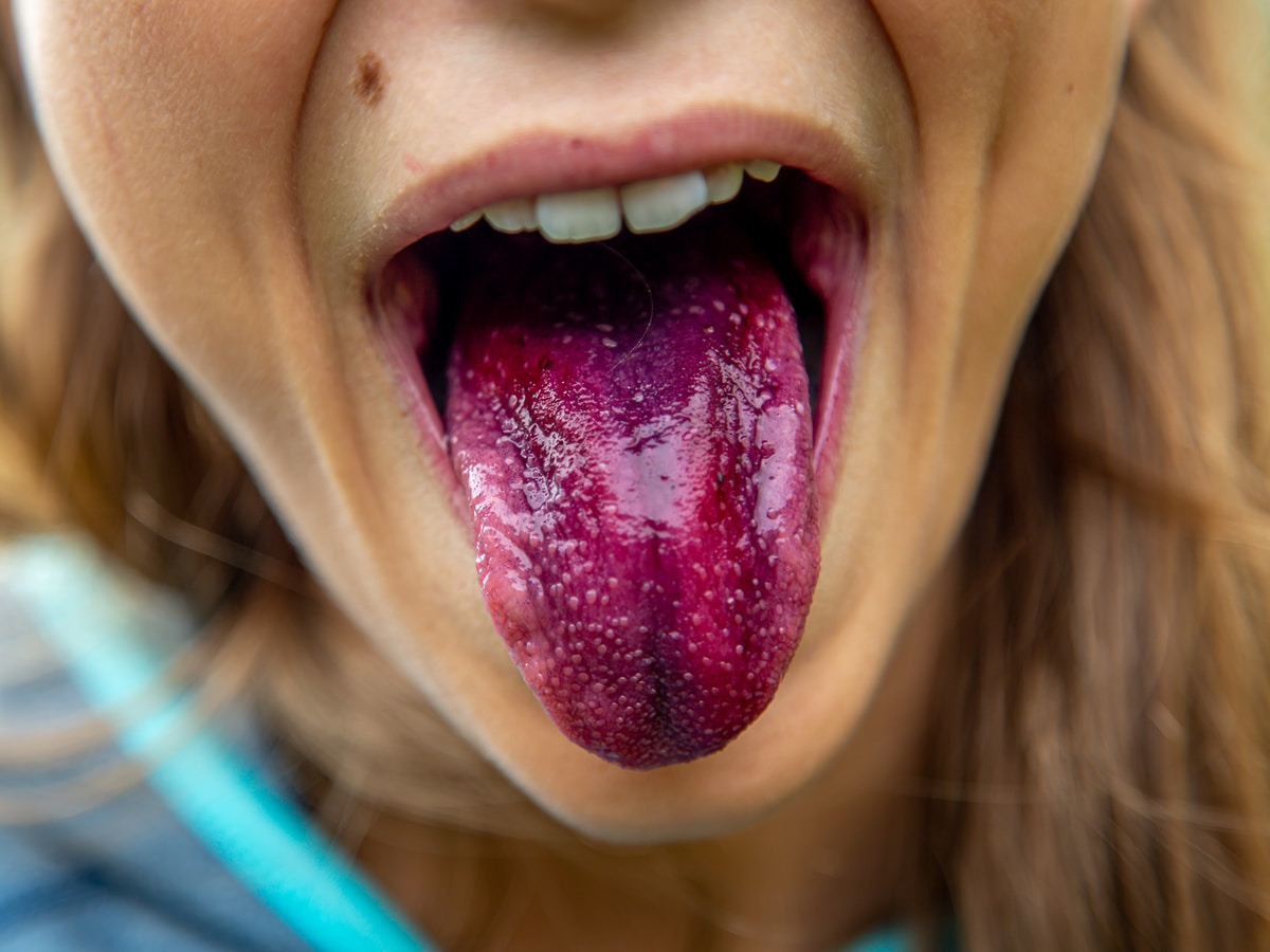 saliva, woman showing tongue with purple color during daytime
