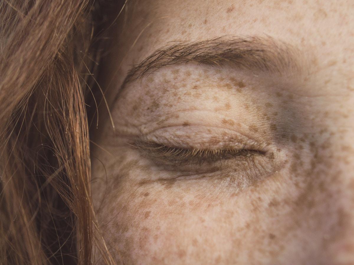 woman eye, pecas