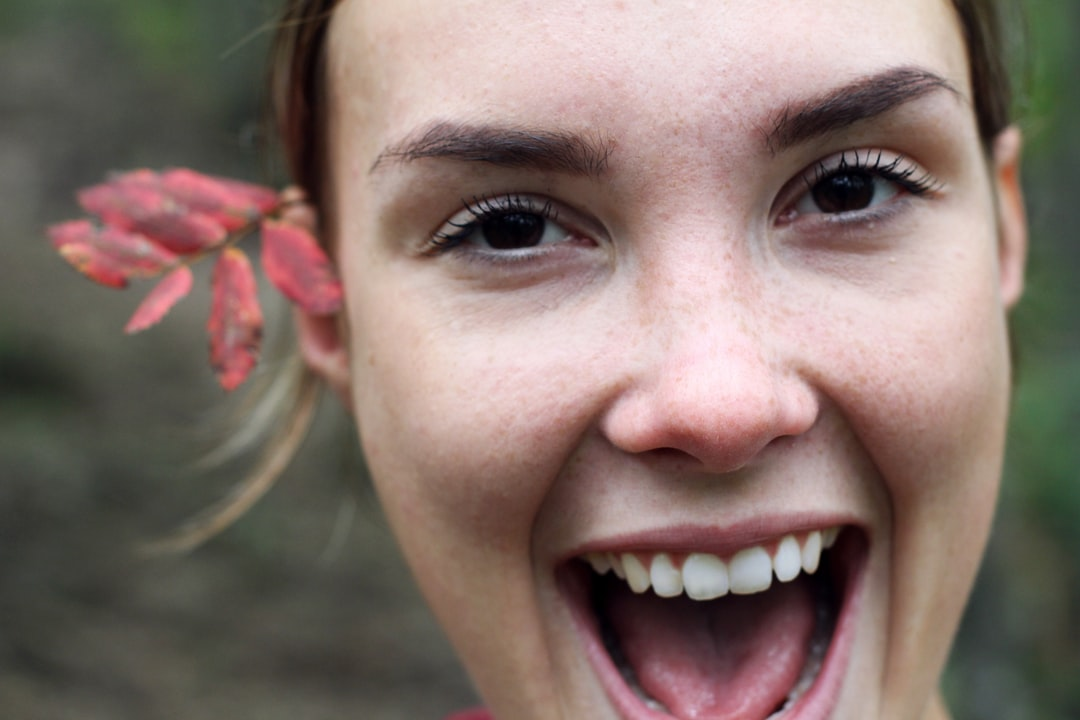 All You Need to Know About Teeth Whitening