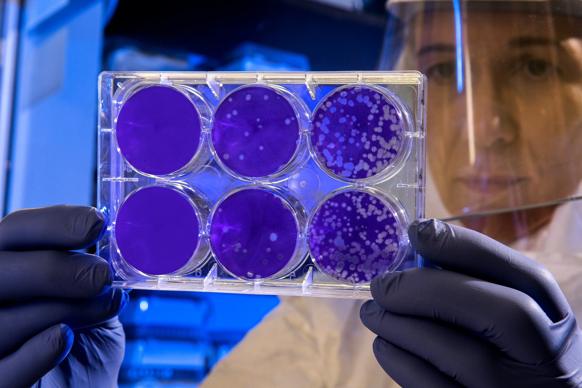 Scientist examines the result of a plaque assay, which is a test that allows scientists to count how many flu virus particles (virions) are in a mixture. To perform the test, scientists must first grow host cells that attach to the bottom of the plate, and then add viruses to each well so that the attached cells may be infected. After staining the uninfected cells purple, the scientist can count the clear spots on the plate, each representing a single virus particle.