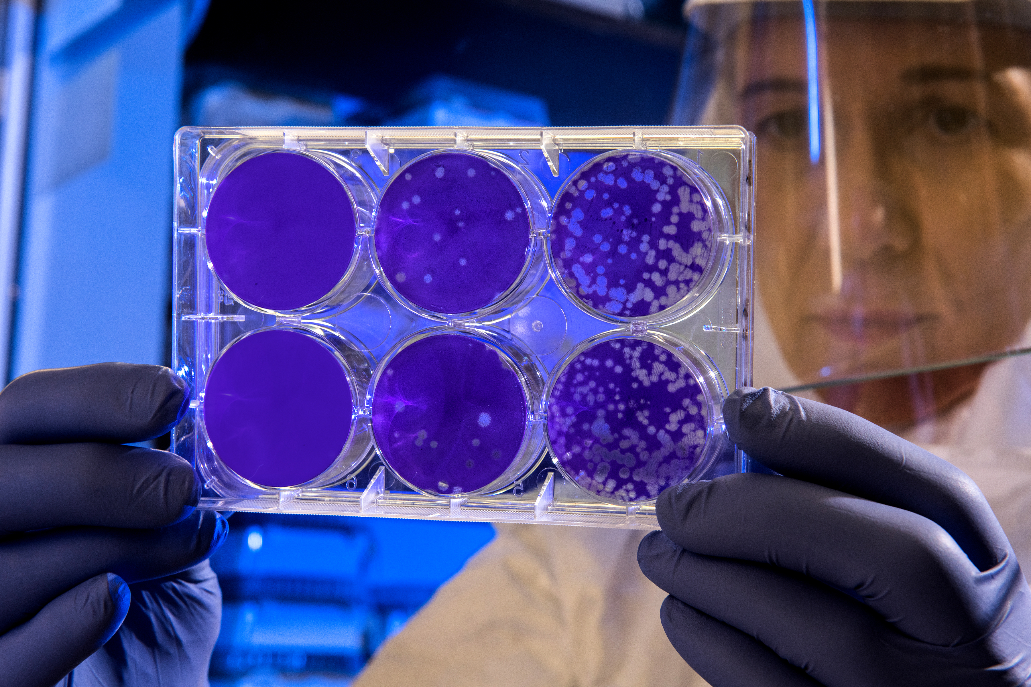"""""""Scientist examines the result of a plaque assay, which is a test that allows scientists to count how many flu virus particles (virions) are in a mixture. To perform the test, scientists must first grow host cells that attach to the bottom of the plate, and then add viruses to each well so that the attached cells may be infected. After staining the uninfected cells purple, the scientist can count the clear spots on the plate, each representing a single virus particle."""""""