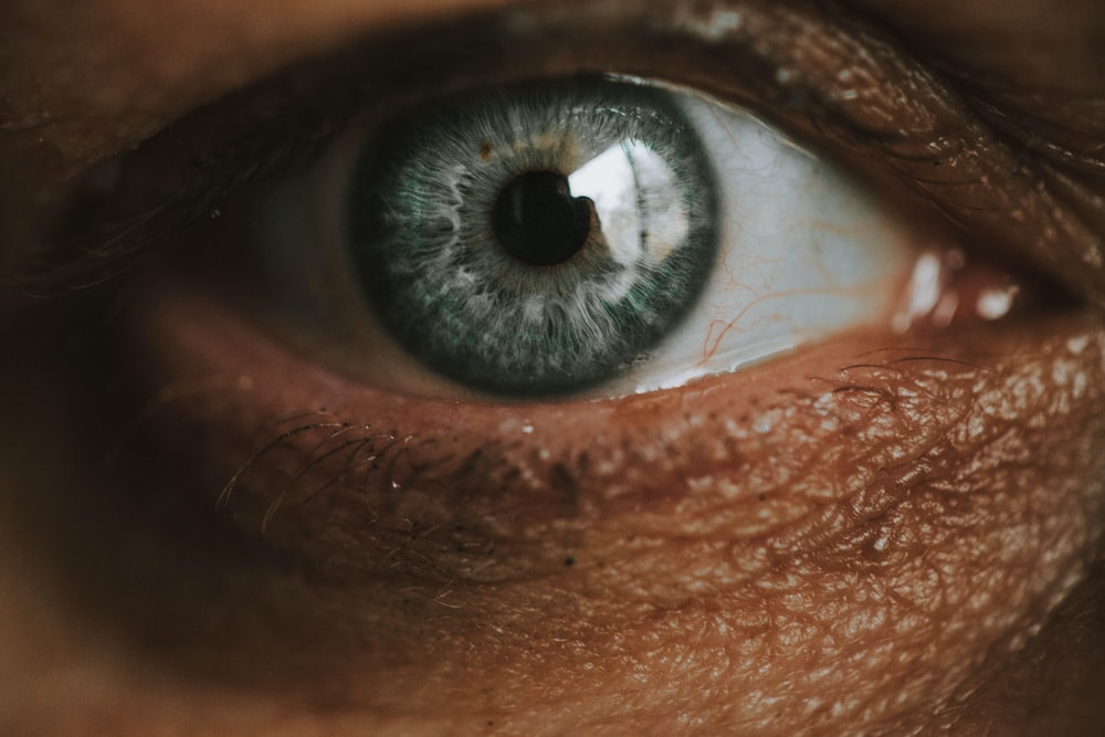 persons eye with black eye