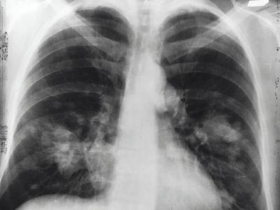 Radiografia torace rivela Covid in asintomatici