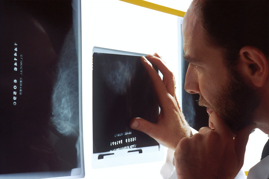 A doctor examines mammograms on a view box.