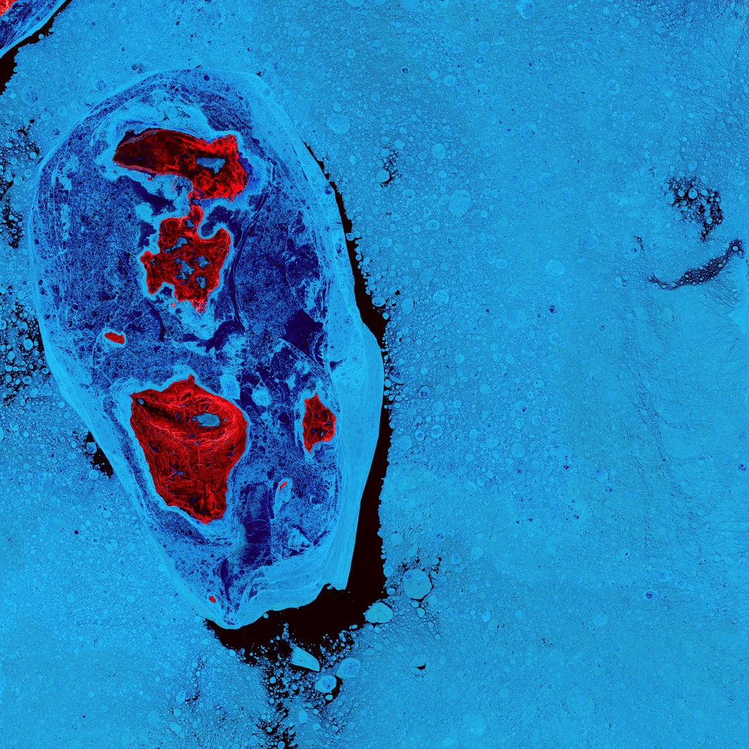 The ice surrounding the northern Canadian Spicer Islands, shown in bright red, resembles a cell, complete with ribosomes, mitochondria, and a nucleus. Even though the image was captured shortly after the first day of summer in the Northern Hemisphere, the islands are locked in ice.