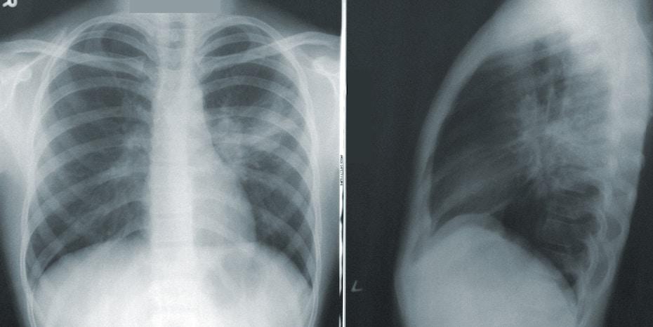 Több mint 3200-an vettek részt a pilisvörösvári tüdőszűrésen
