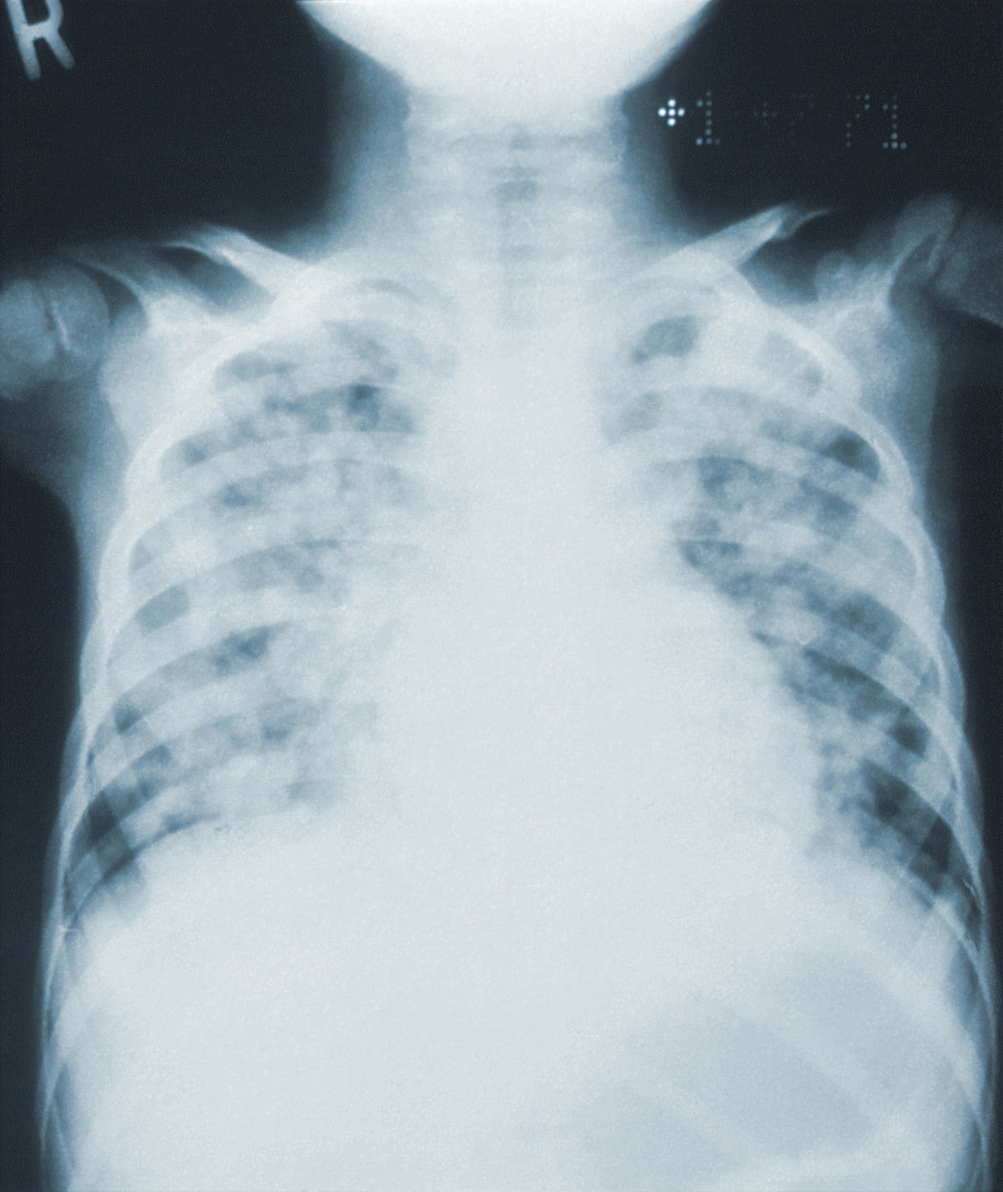 AI For Chest X-Rays Made Easy!