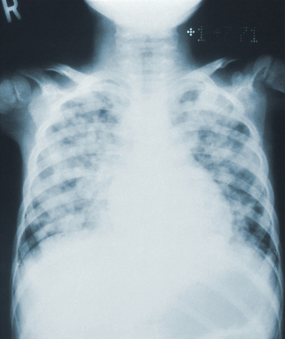 X-ray showing Pneumonia