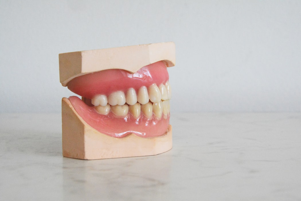 Mengapa Kita Perlu Scaling Gigi Secara Berkala?