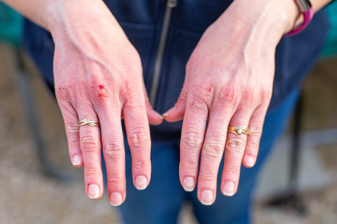 washing hands can cause them to become sore