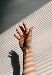 Hexadactylism hands stories