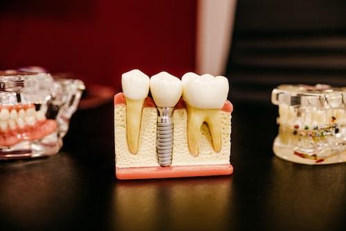 childrens dentist sydney