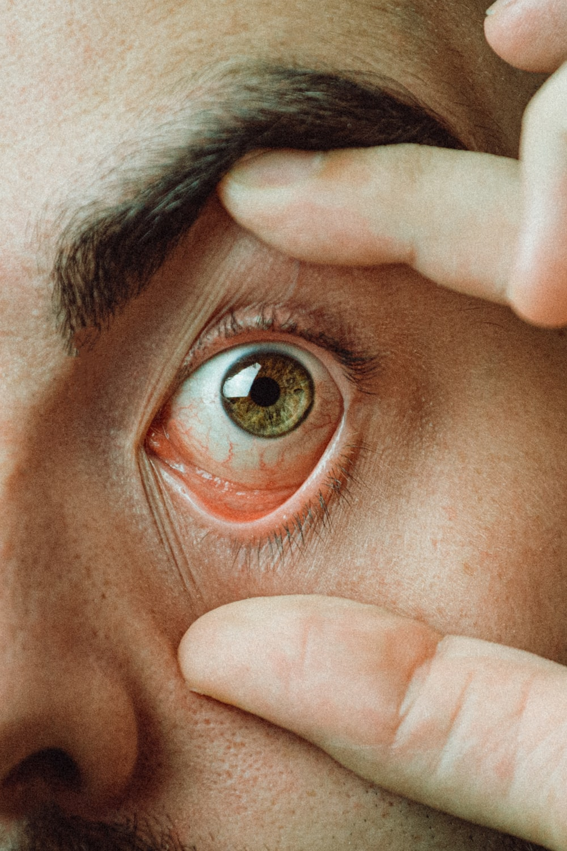 mans eye with brown eyes