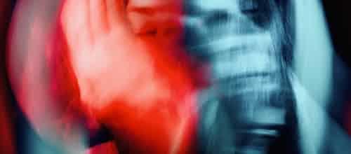 גוף וטראומה: תרפיה ממוקדת גוף בהפרעת דחק פוסט-טראומטית