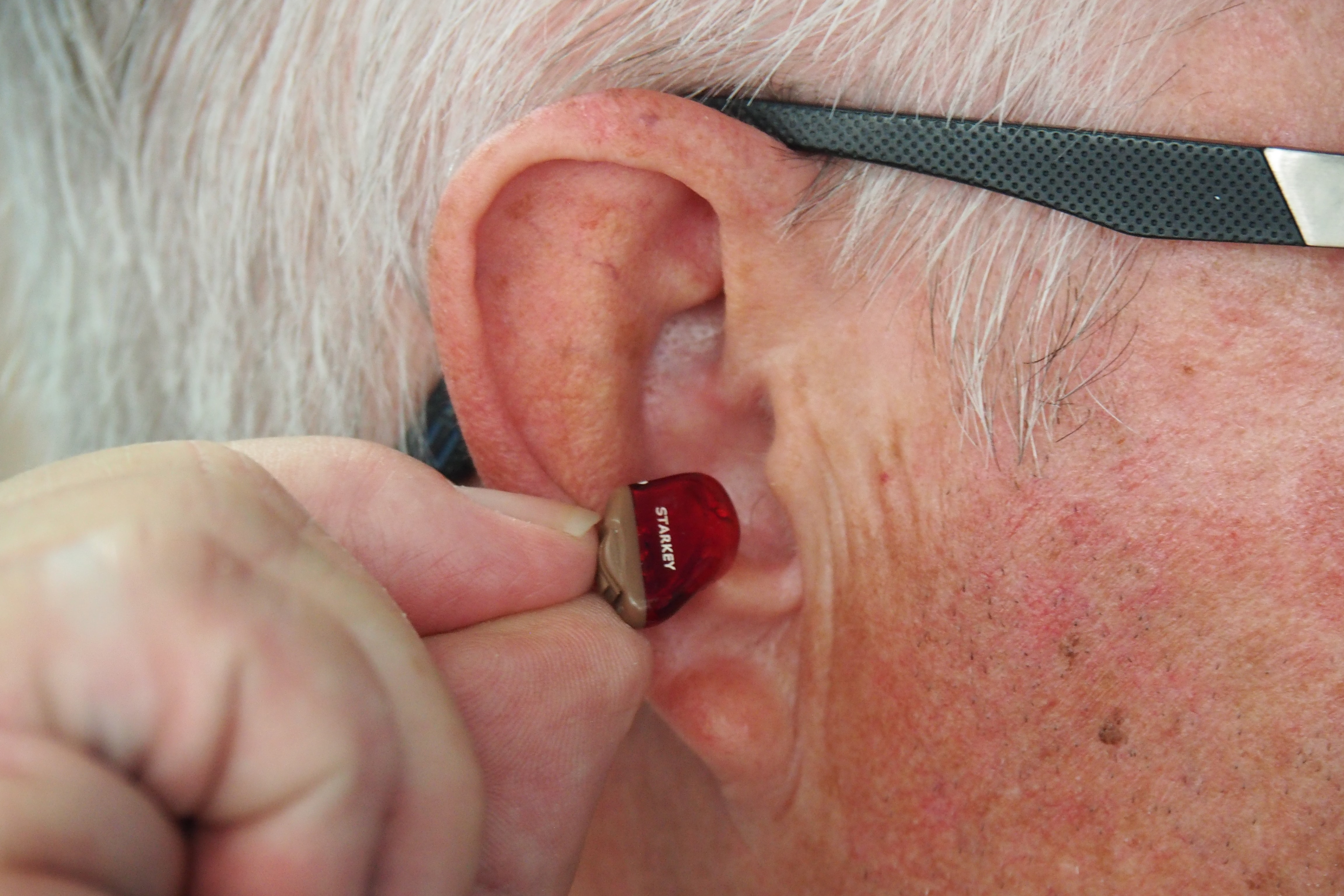 AI Greatly Improves Hearing Aids