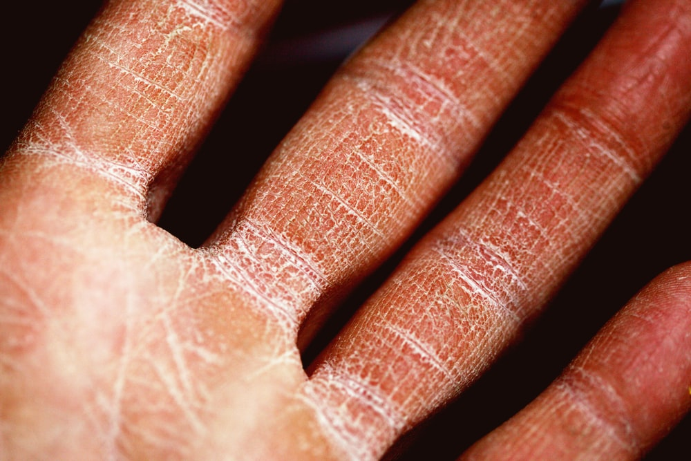 persons palm in close up photography