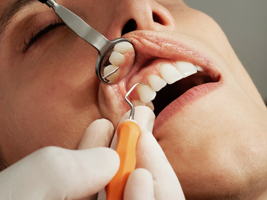 Essential Dental Services