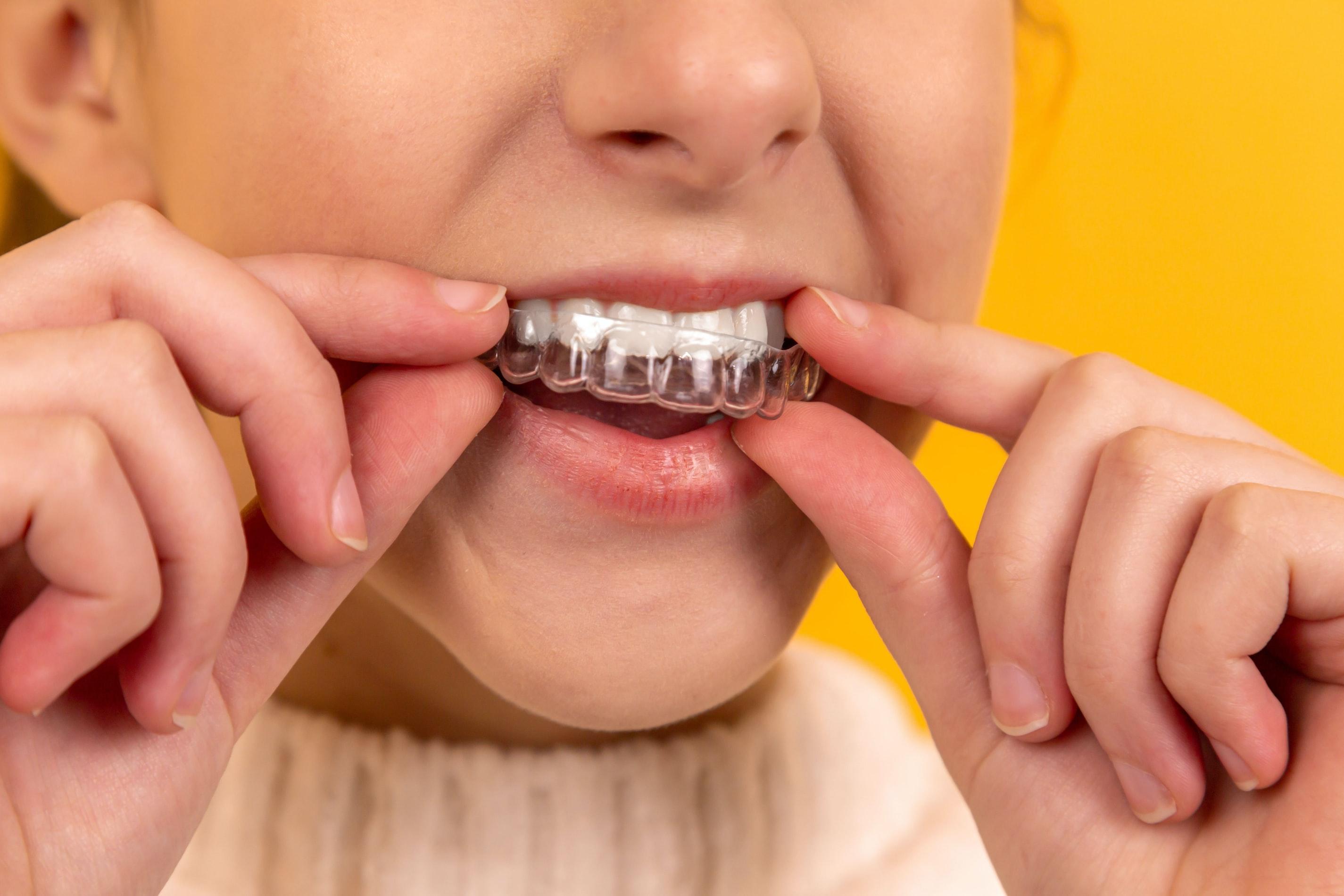 【牙齒矯正懶人包】牙齒矯正有哪些種類可以選擇?有什麼注意事項?全部一次報你知!