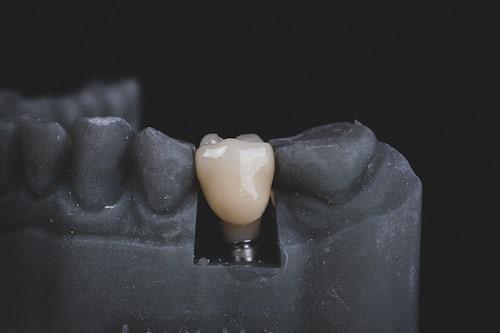 cosmetic dentist tweed heads south